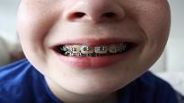 bonus apparecchi denti 2021