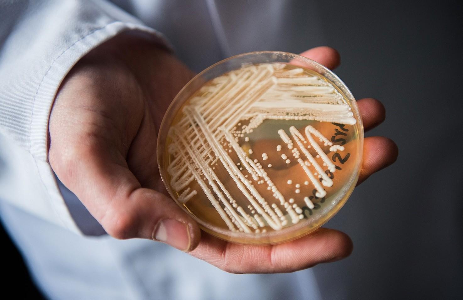 Candida Auris, fungo provoca morte in 90