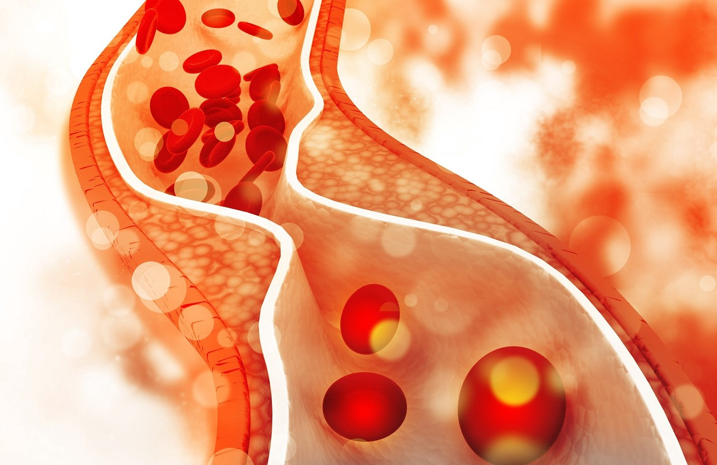 Colesterolo: una iniezione sperimentale