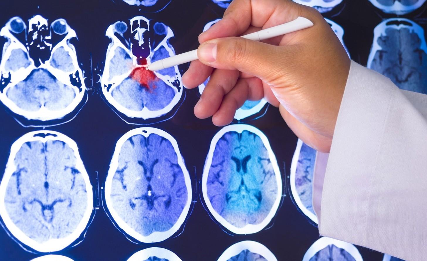 Come curare i tumori: confermato che una