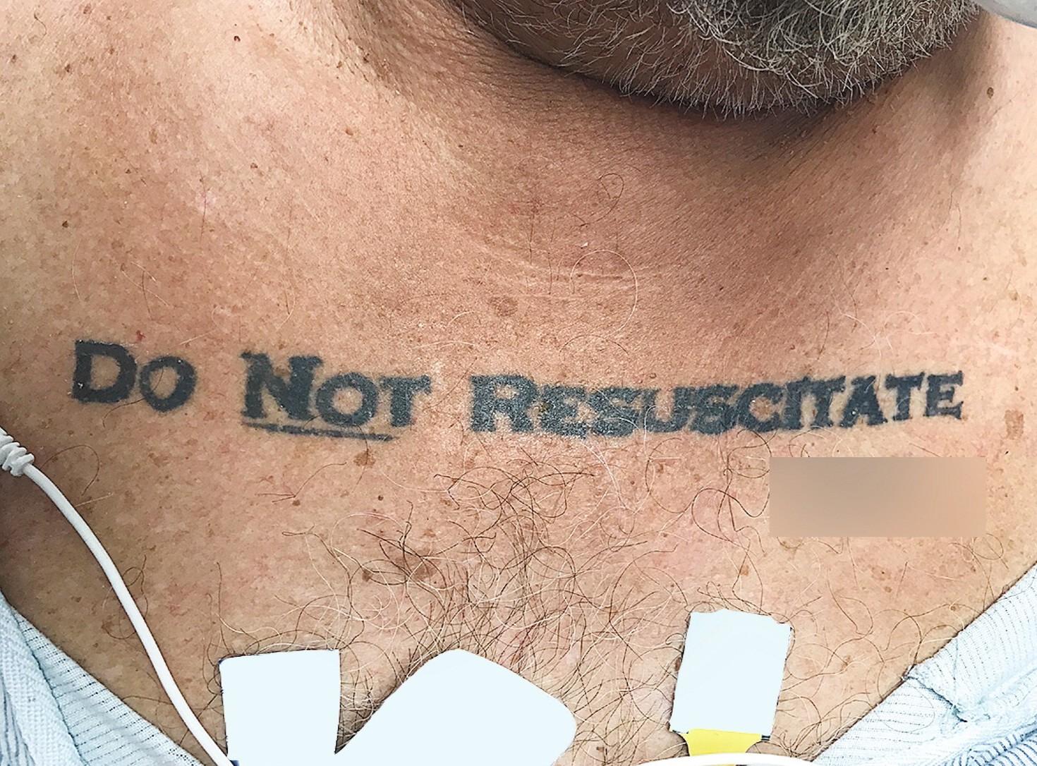 Uomo con tatuaggio non rianimare arriva