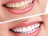 Denti bianchi consigli sbiancamento