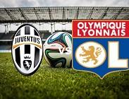 Juventus Lione streaming live gratis per vedere su link, televisioni, siti web